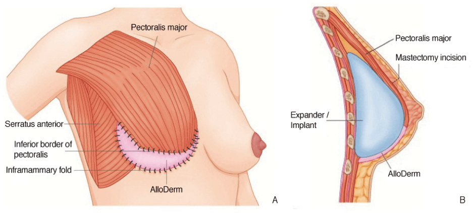 An implant is placed under the pectoralis major muscle to hide the upper  part of the implant ...
