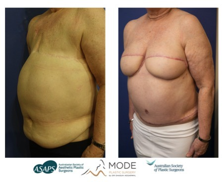 Breast reconstruction surgery results on woman who has suffered a double mastectomy