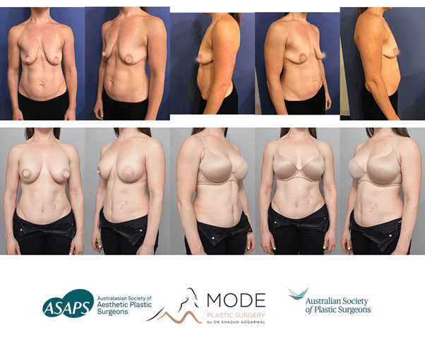 women before and after silicone breast implant surgery