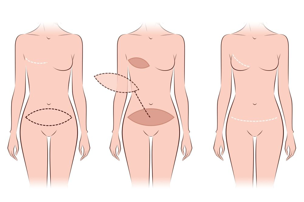 Breast Reconstruction Cost 2020 | Mode Plastic Surgery